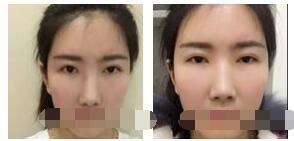 重慶軍美整形做雙眼皮修復案例 一起關注眼睛變美經驗之談