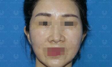北京八大處整形膠原蛋白填充蘋果肌案例 30天后輪廓明顯緊致提升