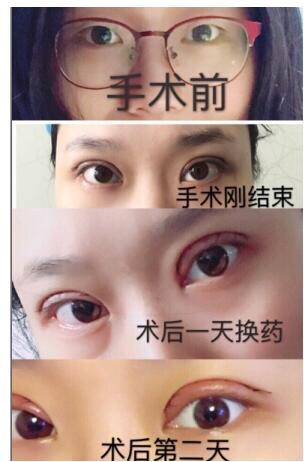 上海九院整形王梓做双眼皮案例 谈一谈眼睛变美的心里感受