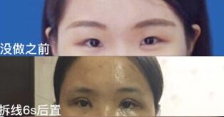 湖南省人民醫院整形李波醫生雙眼皮+內眼角案例 花7500元的變化