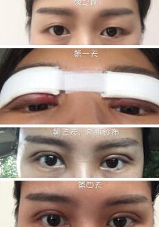 武汉协和整形孙家明医生全切双眼皮案例 恢复很好