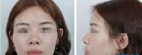 昆明韩辰整形姜东求院长肋软骨+膨体鼻综合修复案例 犹如女神气质
