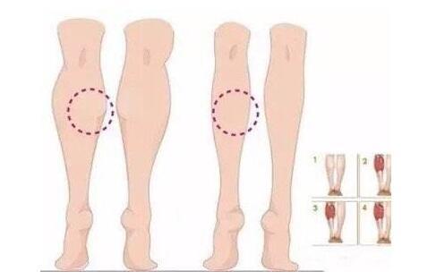 肌肉小腿要怎么减比较好