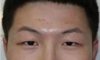 深圳双眼皮案例 术后变帅了很多