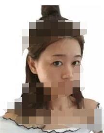 广州美莱整形做隆鼻案例 一起来感受一下变美的那回事