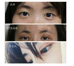 长沙伊美整形陈铁夫做眼部综合术案例 反馈一下眼睛恢复得美美哒