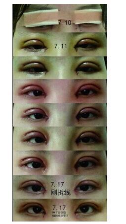 长沙伊美整形刘芳做眼部综合术案例 术后美眼变化很大感受