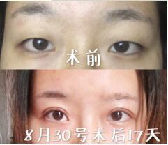 北京同仁整形孙强做全切双眼皮案例 反馈12000眼睛变美的那件事