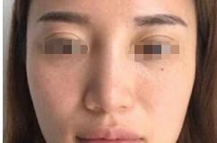 重庆术妍整形汪志强医生达拉斯综合隆鼻案例 达到我理想的翘度