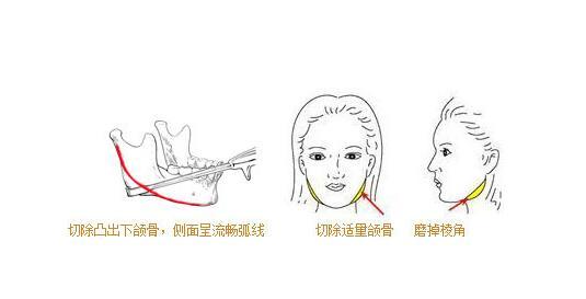 下頜角整形手術是否會留下疤痕主要跟這三個因素有關