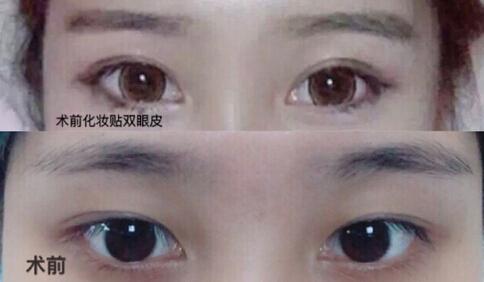 长沙伊美整形刘芳医生全切双眼皮案例