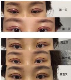 杭州117医院陆新做双眼皮案例 反馈一下3800实惠价变美的我