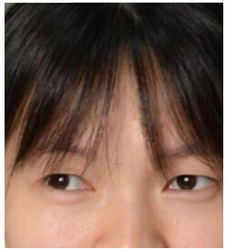 武汉卓美整形王海平做微创双眼皮案例 反馈一下我的眼睛变美感悟