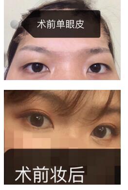 上海九院整形周医生做双眼皮案例 术后我变美的故事喝大家分享
