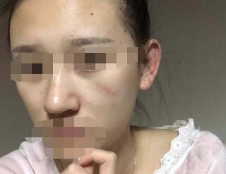 上海九院整形冯少清祛疤案例 术后70天疤痕不见了脸变得又白又嫩