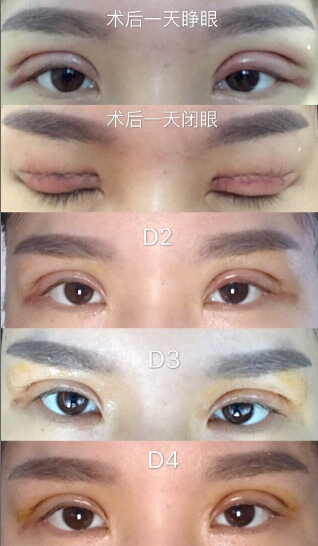 杭州第一人民医院整形范希玲医生全切双眼皮案例
