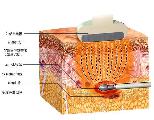 BodyTite射頻溶脂平臺