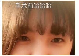 江苏中医院整形王金明做全切双眼皮+开眼角案例 分享5600变美经验