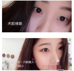 北京八大处整形尹宏宇做切开法双眼皮案例 反馈我眼睛变美经验