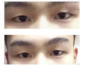 成都铜雀台整形徐敦做眼部综合术案例 反馈一下男人变美记