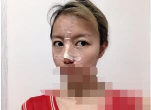 广州禾丽整形做隆鼻案例 反馈颜值变高的那件事