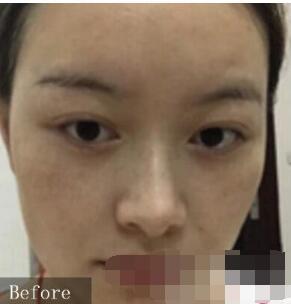 济南华夏整形做激光祛斑案例 反馈一下肌肤变美的经验