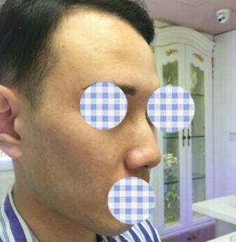 广州隆鼻案例 男性也照样爱美