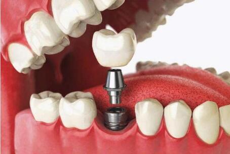 單顆種植牙需要多少分鐘就做好