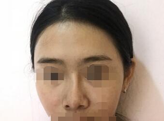 上海九院整形戴婷婷醫生隆鼻案例 術后90天的變化心得分享