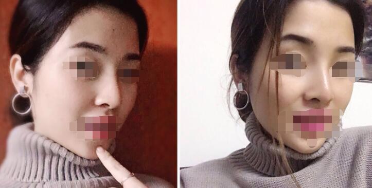 长沙单纯硅胶隆鼻案例