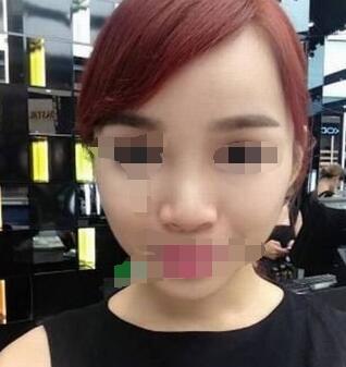 广州隆鼻案例 术后感觉自己就是女神 哈哈......
