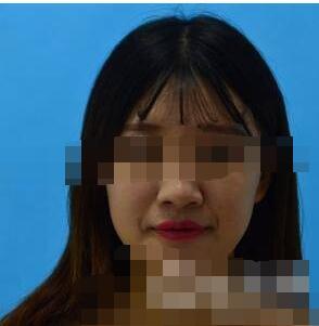 天津菲絲瀾整形劉玉剛做自體脂肪豐面頰案例 反饋我臉變飽滿經驗