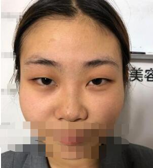 哈尔滨艺星整形割双眼皮案例 分享60天后眼睛变美的日记