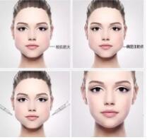 注射BOTOX瘦臉多久又可以打一次