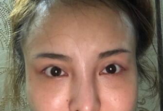 上海九院整形姜陶然医生双眼皮手术案例 术后45天眼睛自然漂亮