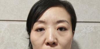上海九院整形闵沛如医生双眼皮手术案例 术后48天自信满满的