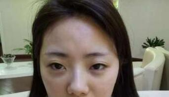 上海九院整形孙笛医生双眼皮案例 分享术后美美的自己