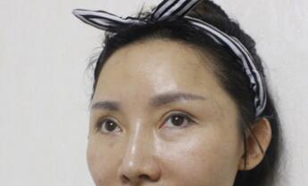上海九院整形仇雅�Z双眼皮手术案例 术后40天分享自己的美眼了