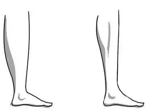 郑州小腿吸脂的优势是什么