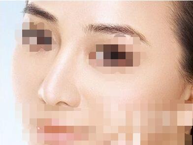 今日頭條:注射隆鼻材料重要性