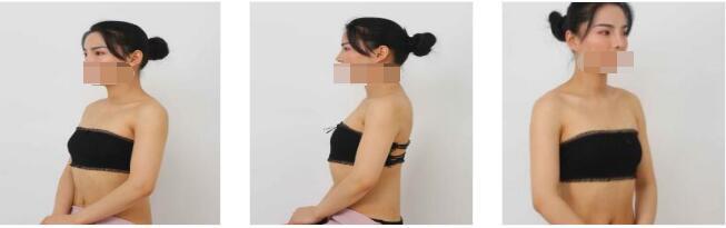 上海美萊整形魏丹做假體隆胸案例 分享一下我的美麗日記