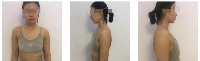 南京美贝尔整形黄名斗做假体隆胸案例 反馈胸部变美那件事