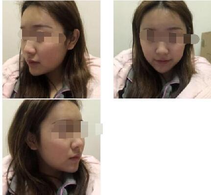 北京長虹整形趙宏偉做面部吸脂案例 反饋顏值變美的那件事