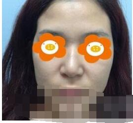 北京同仁整形馬濤做隆鼻案例 反饋一下我的美鼻變美記