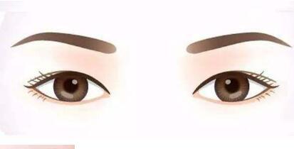 說說關于雙眼皮修復的那些事