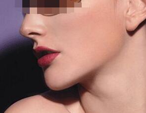 下颌角整形手术为什么要进行全身麻醉