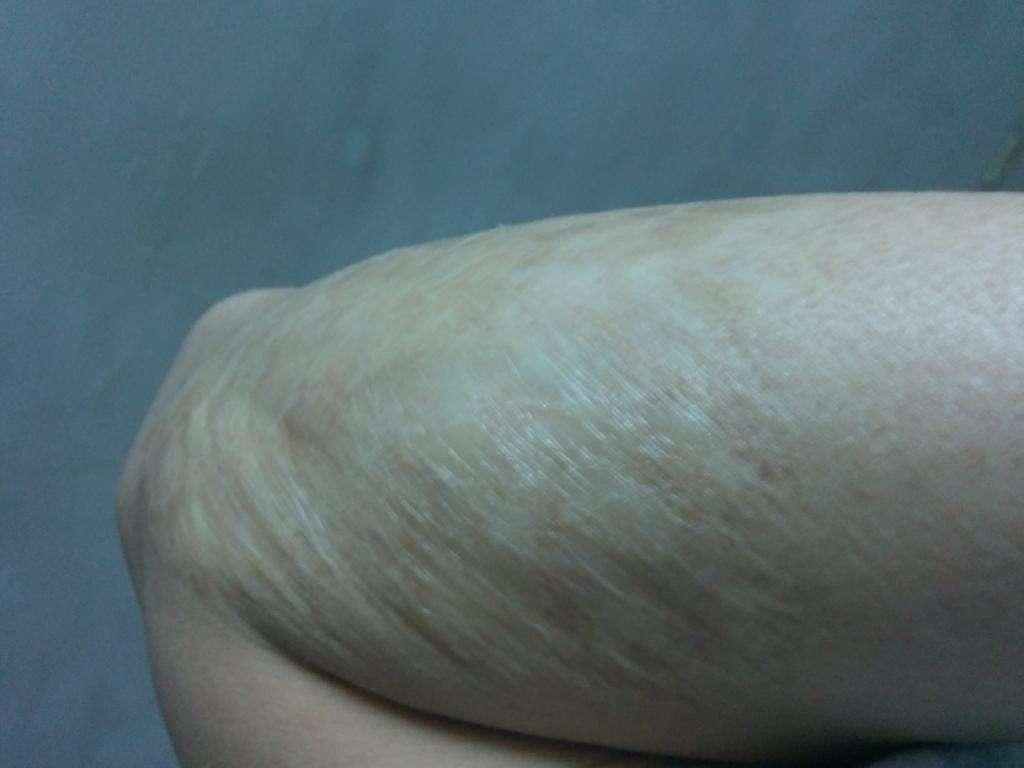 修复疤痕微晶磨削术的效果好不好