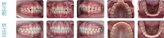 时代天使牙齿隐形矫治