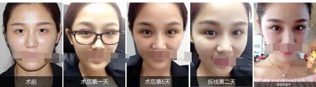 长沙爱思特整形张姣姣做双眼皮口碑技术介绍