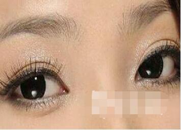 今日关注:选择激光祛黑眼圈方法